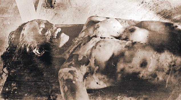 En la parte más espantosa del incidente del paso de Dyatlov, a Dubnina le faltaban la lengua, los ojos, parte de los labios, así como el tejido facial y un fragmento del hueso de su cráneo.